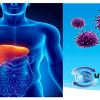 Hepatites Virais Agudas na Infância